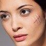 Несколько способов, как убрать шрамы на лице