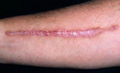 Келоидный рубец на руке