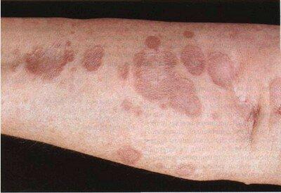 Мазь для рассасывания рубцов и шрамов после операции, лечение послеоперационного лигатурного свища и инфильтрата, рубцы после операции лечение гранулема послеоперационного рубца рассасывание удаление шрамы лигатурный абсцесс келоидный серома как убрать