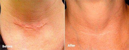 Результат удаления шрама лазером