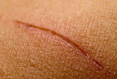 Гормональные мази в лечении суставов