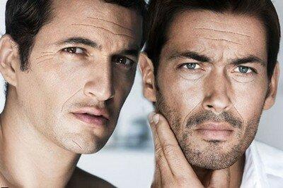 Морщины на лице у мужчин