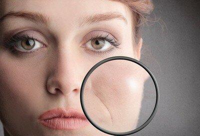 Как убрать носогубные складки косметика