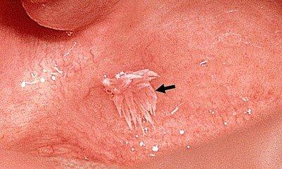 Внешнее проявление вируса папилломы