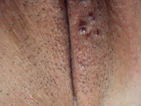 Фото прыщей на половых губах