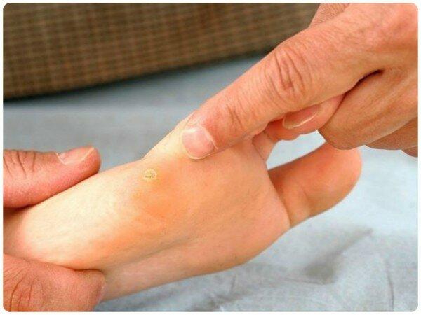 Причины бородавок у детей на ногах