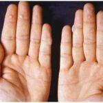 Лечение бородавки на пальце народными средствами