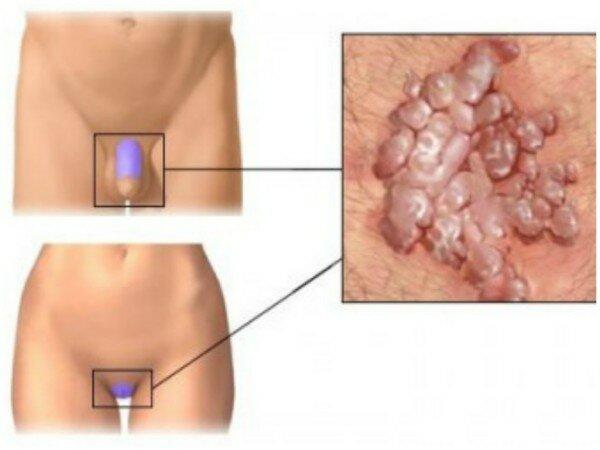 Симптомы и локализация половых бородавок